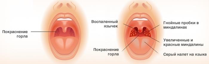 Причины, симптомы и осложнения ангины