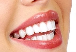 Профессиональное отбеливание зубов после курения