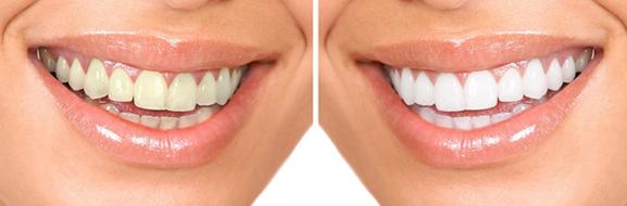 Способы удалить зубной налёт после курения