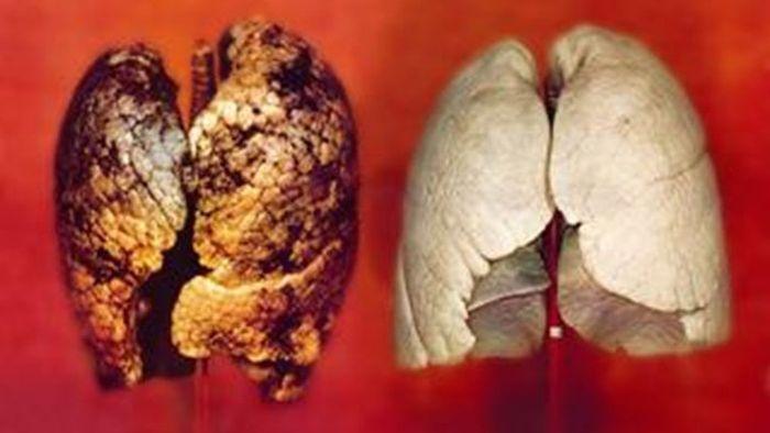Изменения в организме после курения спустя более длительный срок
