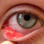 Лечение внутреннего ячменя на глазу