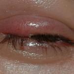 Как лечить ячмень на глазу у беременной