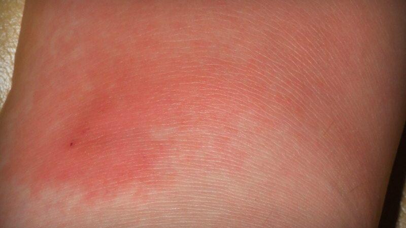 Рожистое заболевание кожи, что это и как бороться?