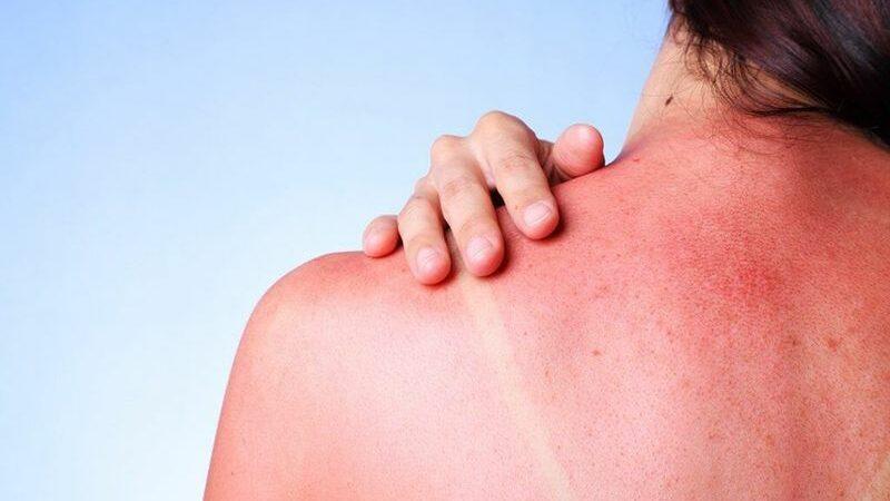 Лучевые ожоги: основные причины и симптомы