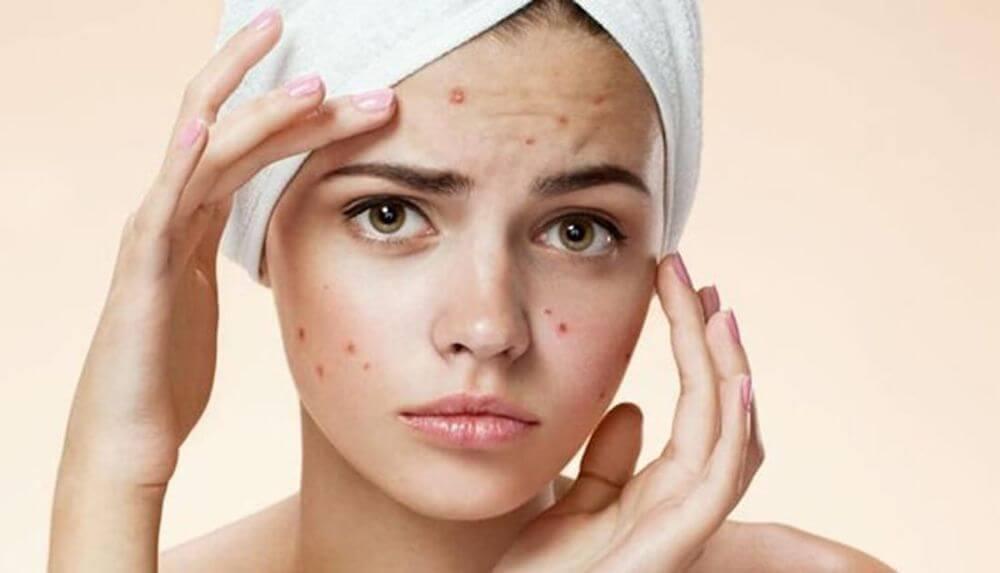 Что такое угревая сыпь и как её лечить на лице